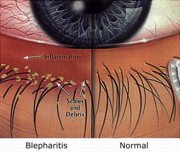 Image result for eyelash extensions irritation
